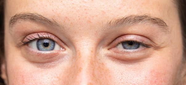 Eine Lidstraffung erfrischt und entspannt den Blick und lässt das gesamte Gesicht harmonischer wirken
