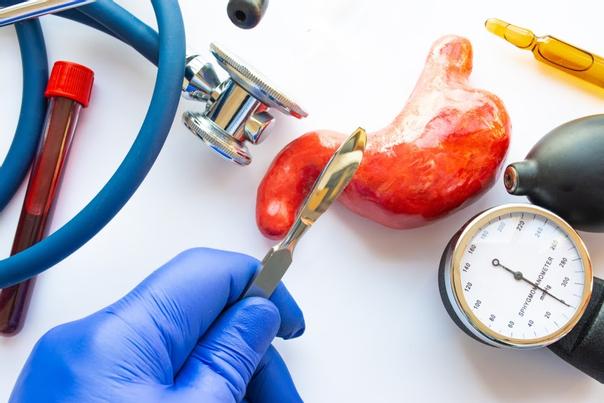 Was ist ein Magenbypass?