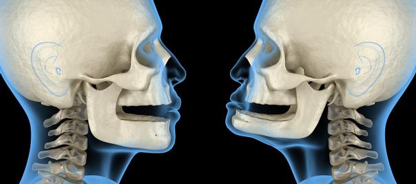 Kieferkorrektur