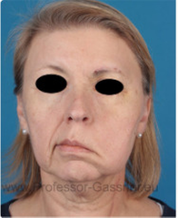 Patientin erlitt eine komplette Gesichtsnervenlähmung.