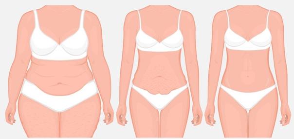 Die Abdominoplastik ist eine der am häufigsten durchgeführten Operationen weltweit
