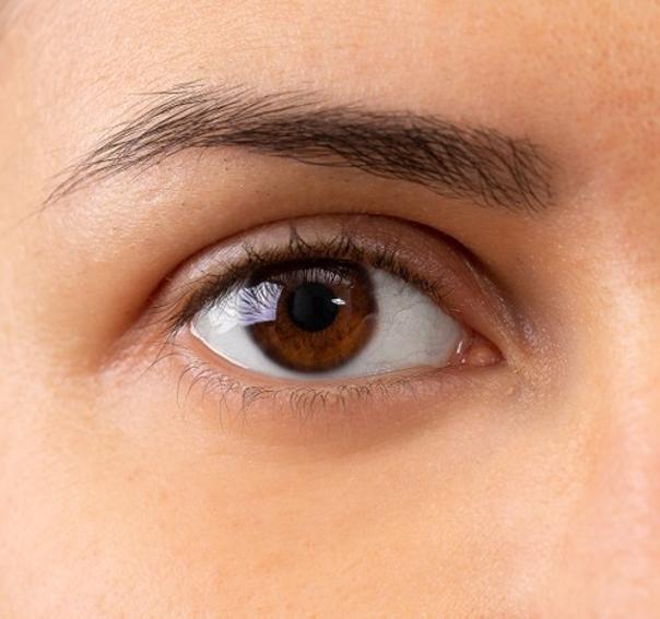 Wie kann ich Augenringe vorbeugen?