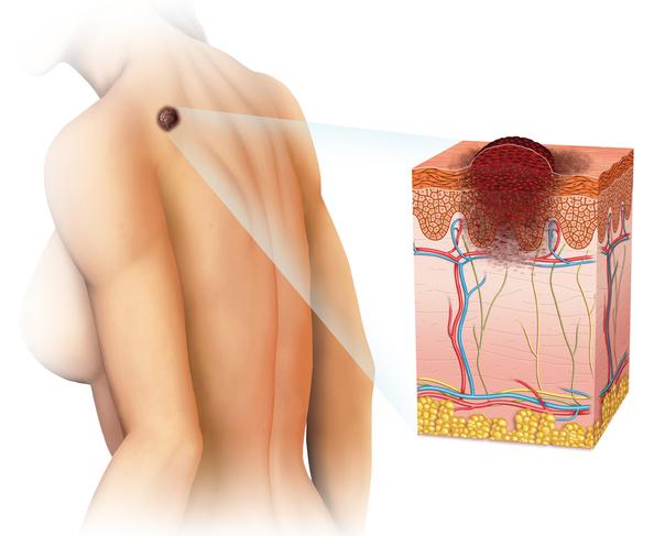Eine Biopsie hilft Hautkrebs auszuschließen