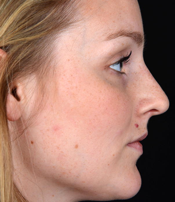 Begradigung der Nase -  Dr. med. Thomas Fasching