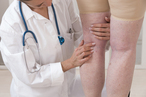 Ein Dermatologe wird ihre Flüssigkeitsretention untersuchen