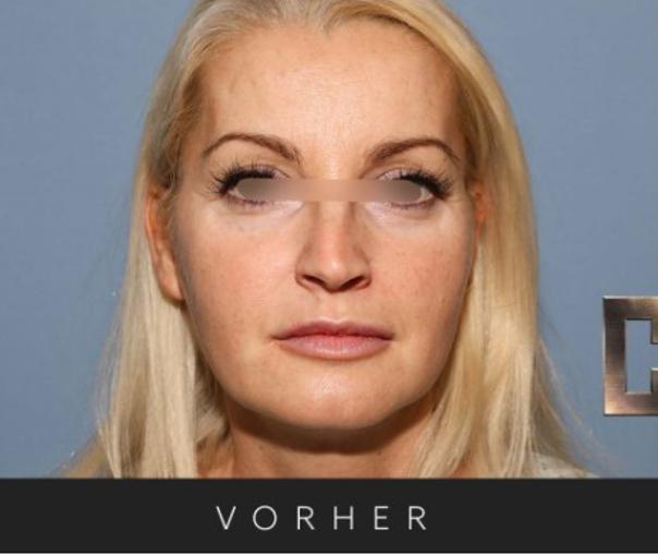 Nasenverschmälerung - Dr. Georg M. Huemer