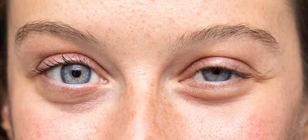 Ptosis bedeutet hängendes Augenlid