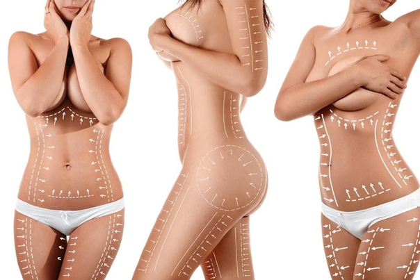 Fettabsaugung ist an nahezu allen Körperteilen möglich