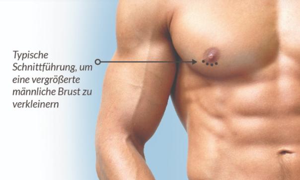 Die typische Schnittführung liegt direkt an der Brustwarze -  Dr. med. Daniel Sattler