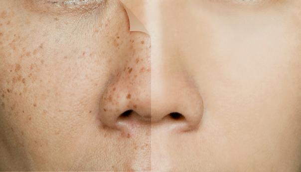 """Durch Mikropigmentierung können Sommersprossen auf die Haut """"tätowiert"""" werden"""