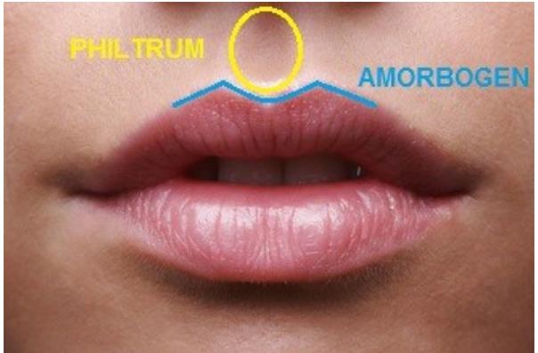 Lippenlifting
