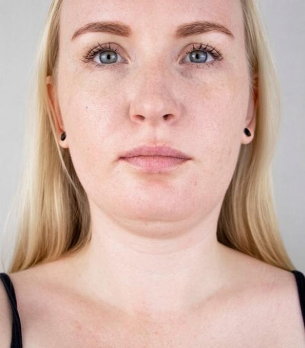 Fett-weg-Spritze kann ein Doppelkinn ohne OP entfernen - Dr. med. Martin Grohmann