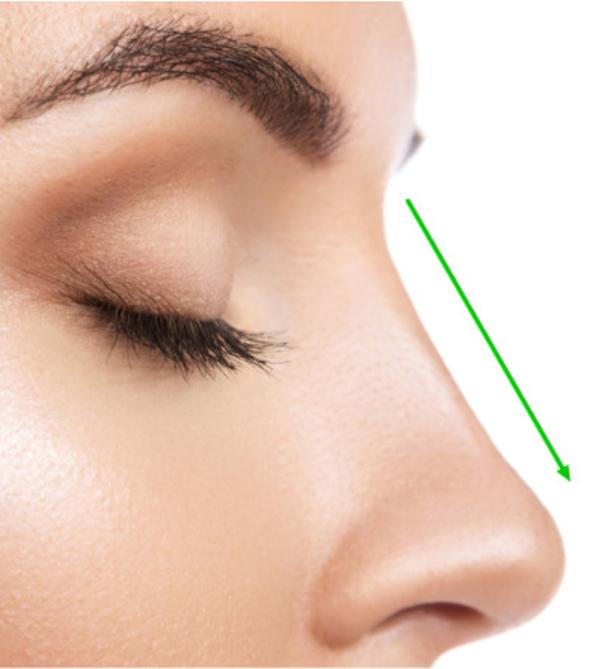 Was ist eine Nasenkorrektur ohne OP