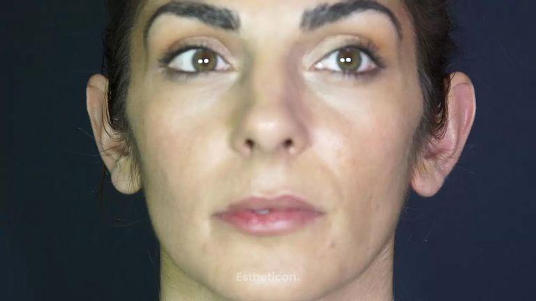 Was ist bei einer Ohrenkorrektur zu berücksichtigen?