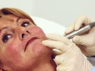 Ablauf einer Behandlung mit Fractora