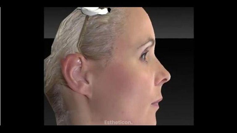 Nasenkorrektur in der Klinik am Rhein