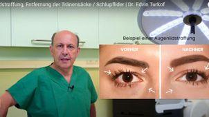 Methoden der Lidkorrektur - Univ. Prof. Dr. Edvin Turkof