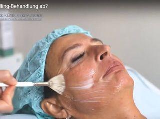 Wie läuft die Needling-Behandlung ab?
