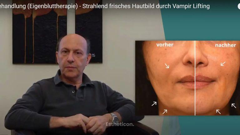 PRP Behandlung (Eigenbluttherapie) - Strahlend frisches Hautbild durch Vampir Lifting