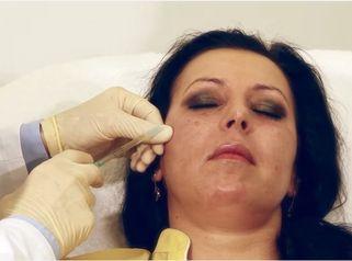 Durchführung einer PRP - Plasmatherapie
