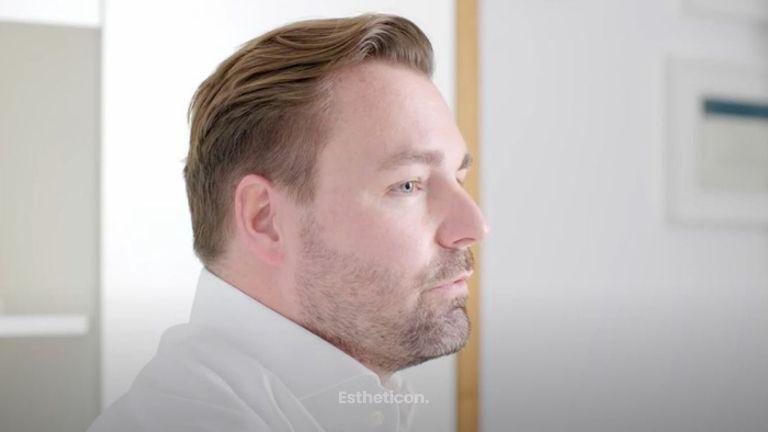 Brustvergrößerung mit Eigenfett München - PD Dr. med. Maximilian Eder