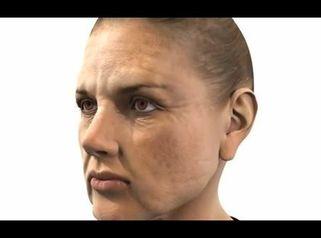 Grundlagen zum Thema Hautalterung